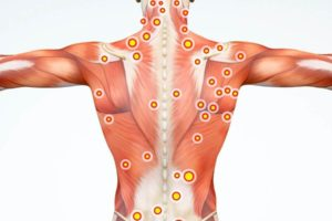 Spine Muscles in Pain