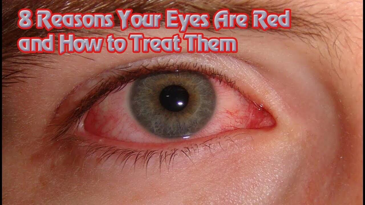 8 Reasons Why Your Eyes are Red
