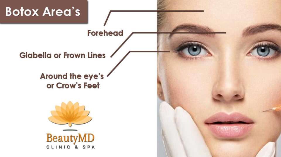 Botox Prevents Wrinkle