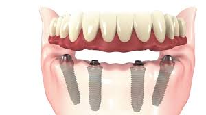 Why you should consider the all-on-4 dental implants