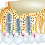 Progress in Dental Implants and Nanotechnology
