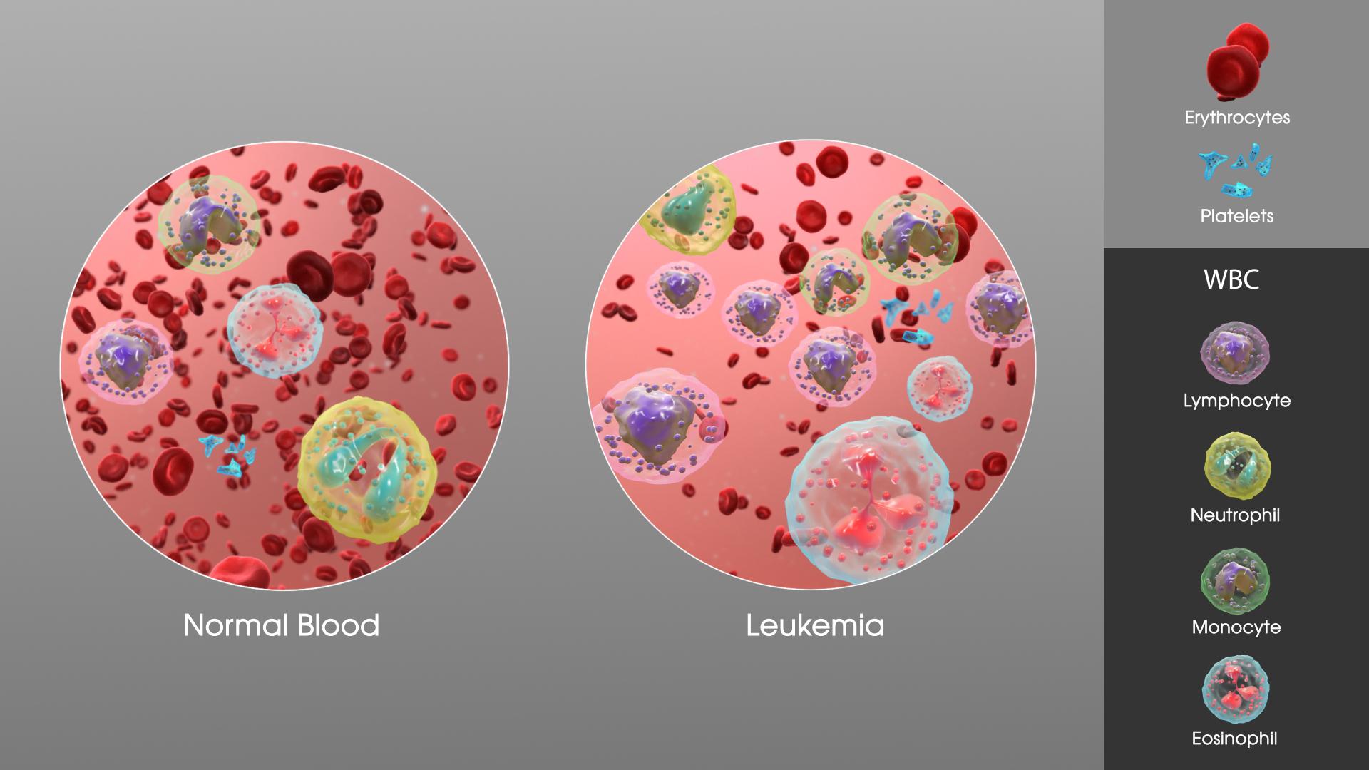 leukemia causes