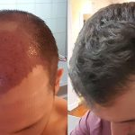 Recover from a Hair Transplant