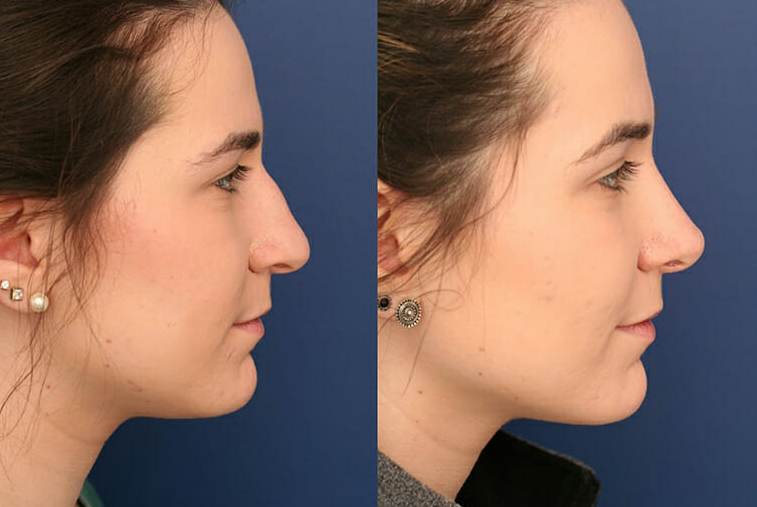before You Get Your Rhinoplasty