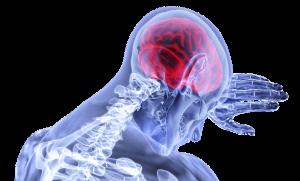 pre stroke symptoms