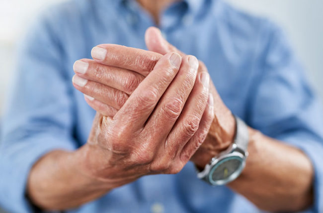 Tips to Deal with Arthritis
